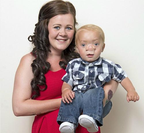 Ollie và mẹ sau khi phẫu thuật. Ảnh: Independent