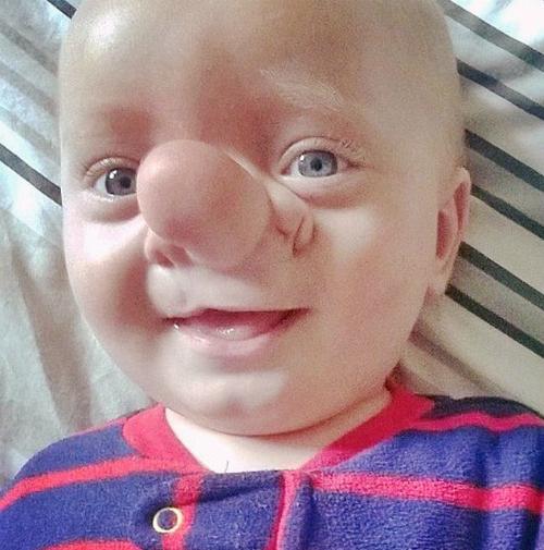Ollie khi chưa phẫu thuật. Ảnh: Independent