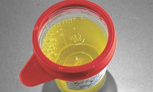 Màu sắc nước tiểu tiết lộ vấn đề sức khỏe