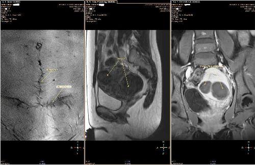 Đa u xơ tử cung có cả sẹo mổ dọc và ngang sau điều trị bằng sóng siêu âm hội tụ. Ảnh: MD.