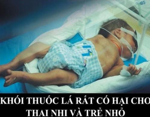 hut-mot-dieu-thuoc-co-hai-bang-mot-lan-chup-x-quang