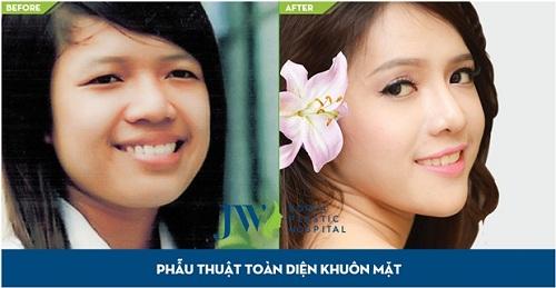 mien-phi-thm-my-den-500-trieu-dong-tai-trong-tai-jw