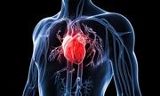 Bệnh mạch vành tim có nên điều trị nội soi