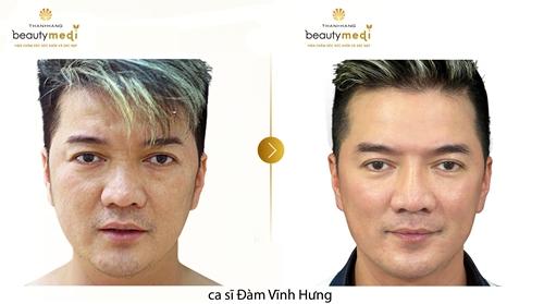 Ca sĩ Đàm Vĩnh Hưng trước và sau khi nâng cơ chỉ vàng tại Thanh Hằng Beauty Medi.