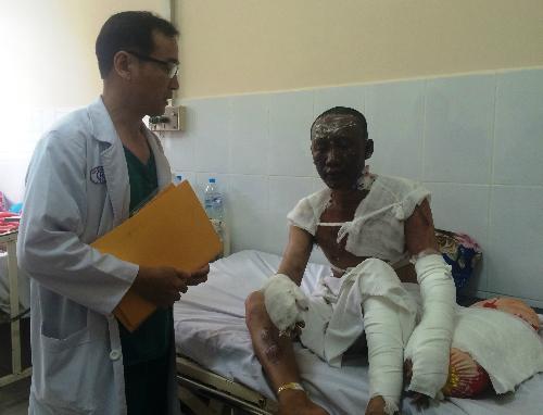 Bệnh nhân Trần Văn Đen bỏng nhẹ hơn nên đang hồi phục tốt. Ảnh: Lê Phương.