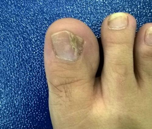 U cuộn mạch dưới móng khá thường gặp, có thể xảy ra ở cả ngón tay lẫn ngón chân. Ảnh: X.A