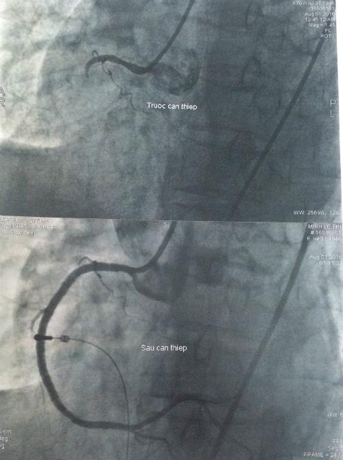Hình ảnh trước và sau khi can thiệp. Ảnh: L.P