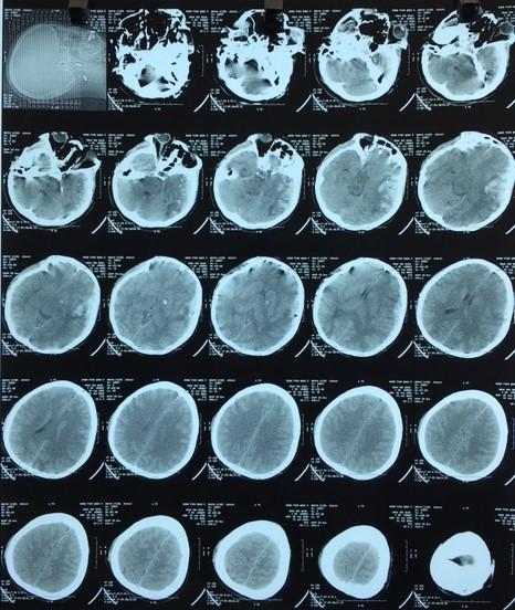 Hình ảnh máu tụ dưới màng cứng và dập não thái dương rải rác bên trái, phù não. Ảnh: Bệnh viện quận 2.