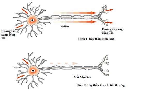 Trong bệnh lý này, hệ thống miễn dịch trực tiếp chống lại các dây thần kinh ngoại biên, thường nhất là dây thần kinh có bao myelin.