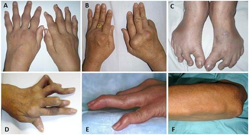 (A) Viêm đối xứng ở các khớp cổ tay, khớp bàn ngón và khớp ngón gần. (B) Bàn tay gió thổi. (C) Biến dạng bàn chân. (D) Ngón tay người thùa khuy.  (E) Ngón tay hình cổ cò. (F) Nốt thấp dưới da vùng cẳng tay.