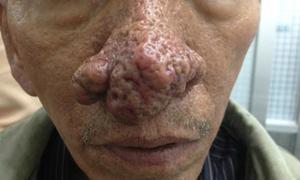 Bệnh lạ khiến người đàn ông có chóp mũi hình bông cải