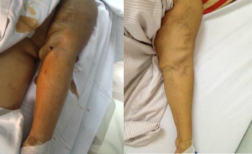 Cánh tay bệnh nhân trước và sau khi can thiệp. Ảnh: T.N