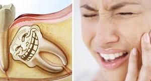 Xử trí khi răng khôn mọc dại như thế nào