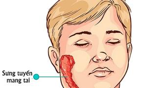 Nhận biết và xử trí khi mắc bệnh quai bị