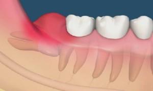 Răng khôn mọc dại có thể dẫn đến chết người