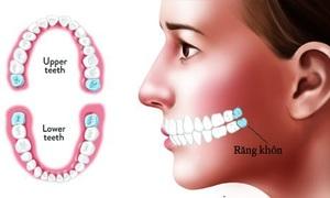 Con người mọc răng và thay răng như thế nào?