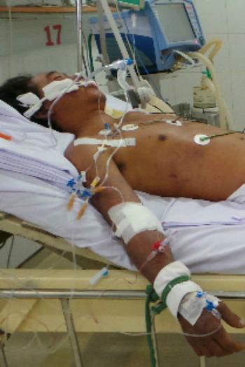 Một bệnh nhân được điều trị liên cầu khuẩn lợn tại Bệnh viện Bệnh Nhiệt đới (TP HCM). Ảnh: T.P.