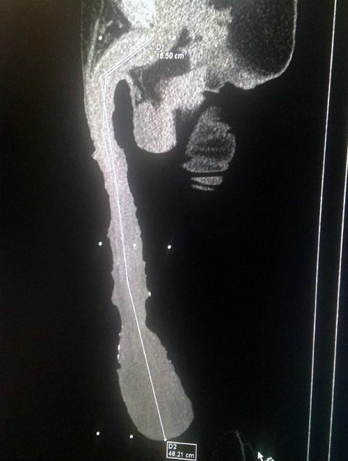 Các bác sĩ đã kiểm tra và xác định chiều dài dương vật phần lớn là bao quy đầu. Ảnh: Mens Health.