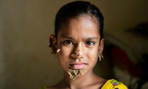 Bé gái 10 tuổi bất ngờ 'mọc cây' trên mặt