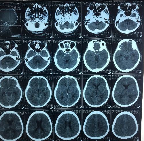 CT Scan sọ não có xuất huyết khoang dưới nhện và bao trước cầu não.