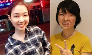 Hành trình tái tạo gương mặt cho nữ sinh bị tạt axit ở Sài Gòn
