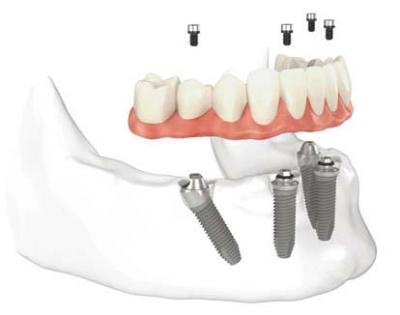 ly-do-can-trong-rang-implant-de-phuc-hoi-rang-mat