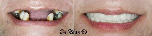 ly-do-can-trong-rang-implant-de-phuc-hoi-rang-mat-2