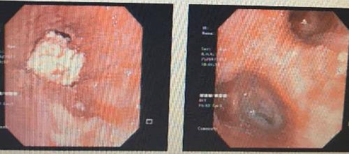 Hình ảnh trước và sau khi gắp dị vật.