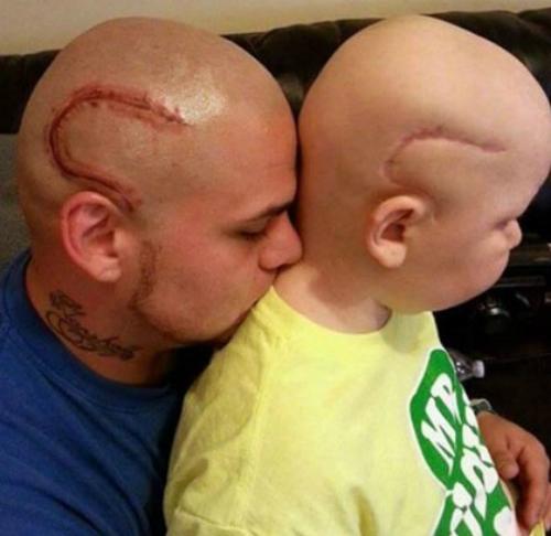 Ông bố người Mỹ xăm hình vết sẹo trên đầu giống cậu con trai của mình. Ảnh: Buzzfeed.