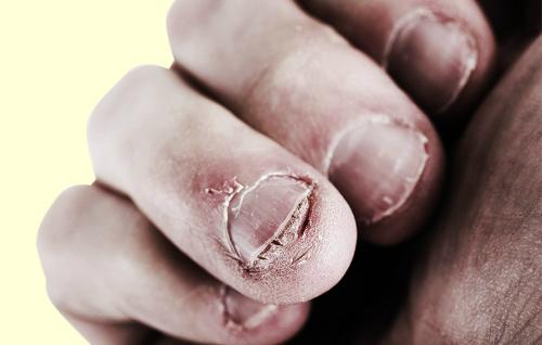 Thói quen cắn móng tay có thể gây nhiều hậu quả. Ảnh: prevention.