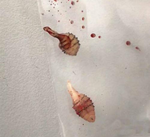 Bác sĩ gắp được 2 con giòi từ chân Gu. Ảnh: Asiawire