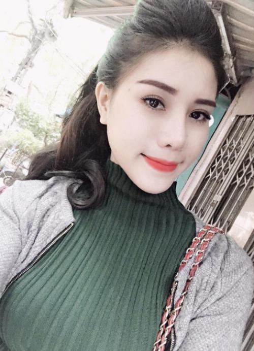 da-cang-min-trang-sang-voi-xoa-nhan-bang-filler-6