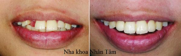 implant-vung-thm-my-ky-thuat-thach-thuc-chuyen-gia