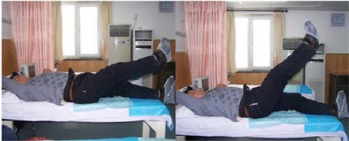 Một bệnh nhân 54 tuổi đau lưng hơn 3 tháng, đau nhói vùng mông và đùi, sau điều trị bằng liệu pháp chính xác đã có thể nhấc chân lên 35 độ.