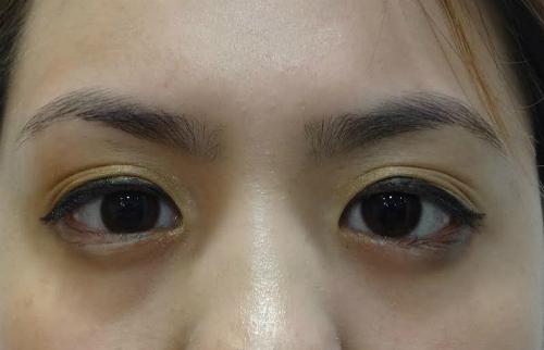 Nếu không giải quyết triệt để, bệnh nhân có khả năng sẽ mất thị lực. Ảnh: T.D