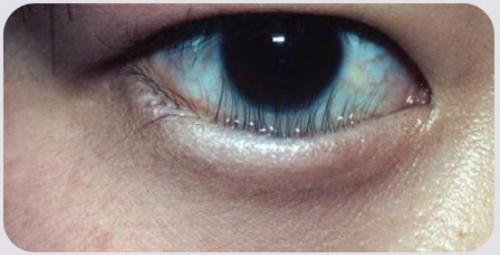 Lông mi dưới bệnh nhân mọc chọc thẳng vào mắt. Ảnh: T.D