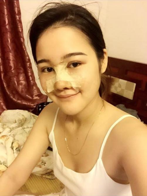 co-gai-co-guong-mat-tuong-sap-hoi-han-vi-nghien-phau-thuat-thm-my-2