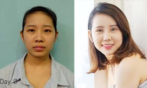 Cô gái miền Tây trốn nhà sang Hàn Quốc sửa cả gương mặt