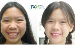 Tìm lại nụ cười cho cô bé không có tuổi thơ vì hô hai hàm