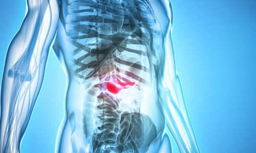 8 dấu hiệu sớm cảnh báo bạn bị ung thư tụy