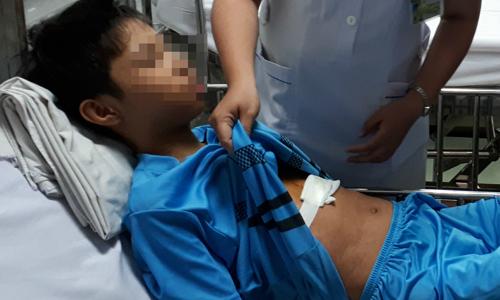 Mổ lấy kim khâu khỏi tim bé trai 13 tuổi