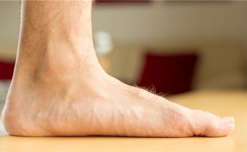 Lòng bàn chân của người bị bàn chân bẹt tiếp xúc trực tiếp với mặt đất.
