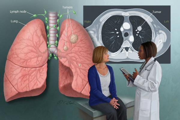 Ho dai dẳng, tức ngực có thể là dấu hiệu ung thư phổi. Ảnh:HealthCentral