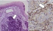 Ung thư vòm họng: Dấu hiệu nhận biết và cách điều trị