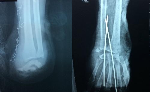 Tay trái bệnh nhân đứt rời, tay phải đứt gân cơ mặt trước. Ảnh: H.K