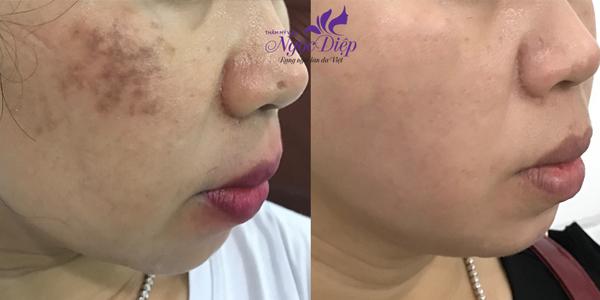 Hình ảnh trị nám bằng laser: trước và sau của một ca trị liệu