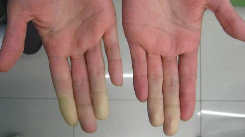 Bệnh nhân lupus thường nổi ban, da xanh xao. Ảnh: healthline