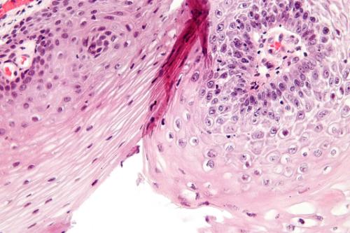 Ảnh: Condyloma acuminatum