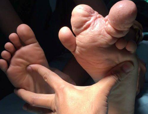 Bàn chân dị tật với 2 ngón chân khổng lồ trước phẫu thuật: