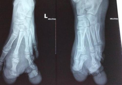 Ảnh X-Quang trước phẫu thuật cho thấy các ngón 2,3 bị biến dạng nặng.